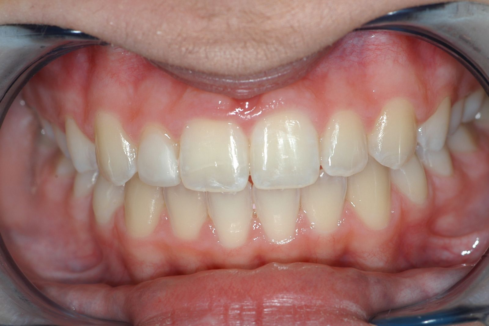 after composite veneers - Findlay Veneers