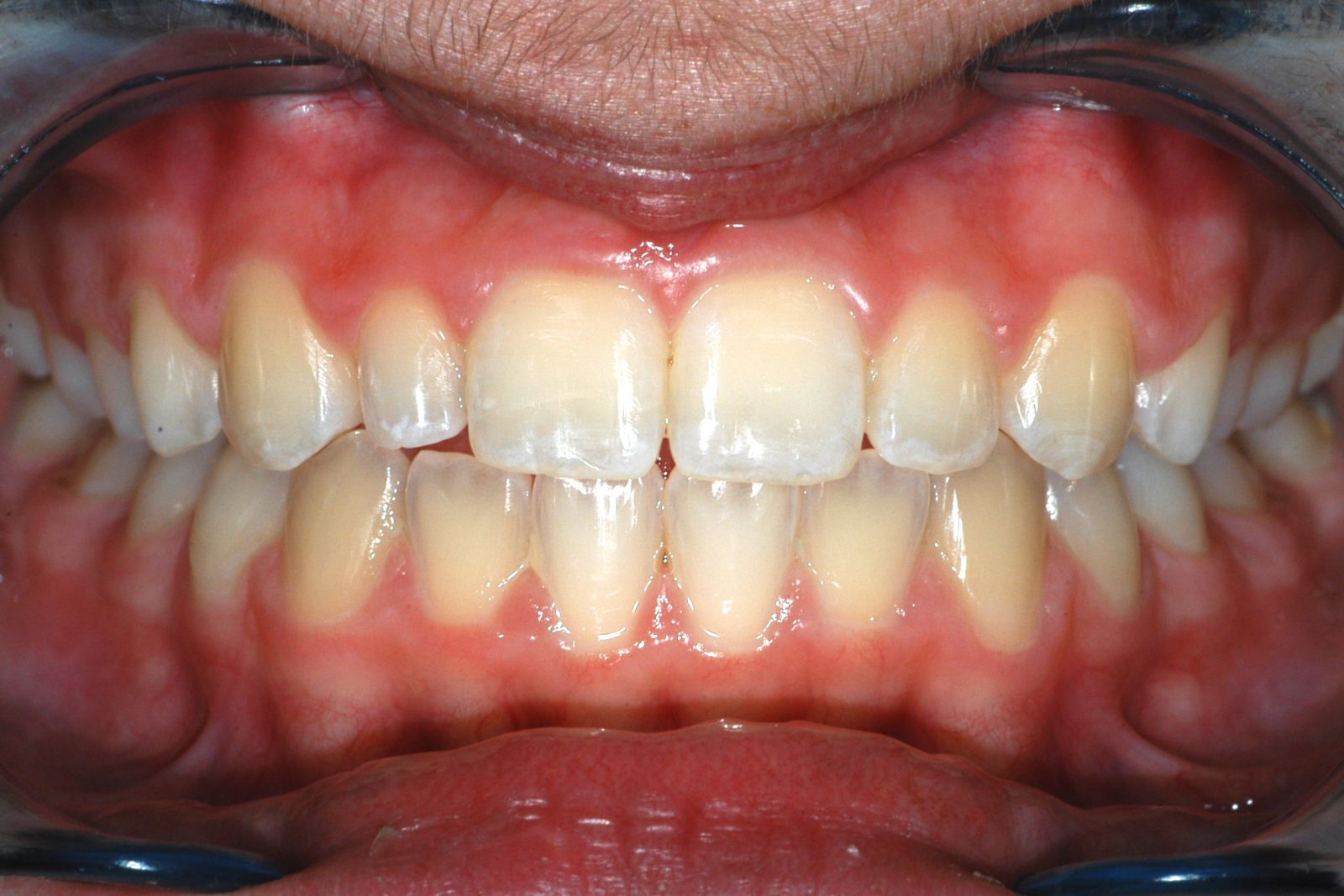 composite veneer before image - Findlay Veneers