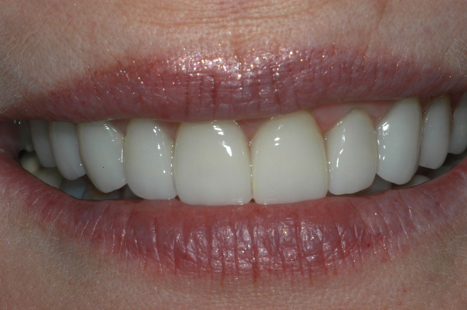 after veneers 3 - Findlay Ohio Veneers