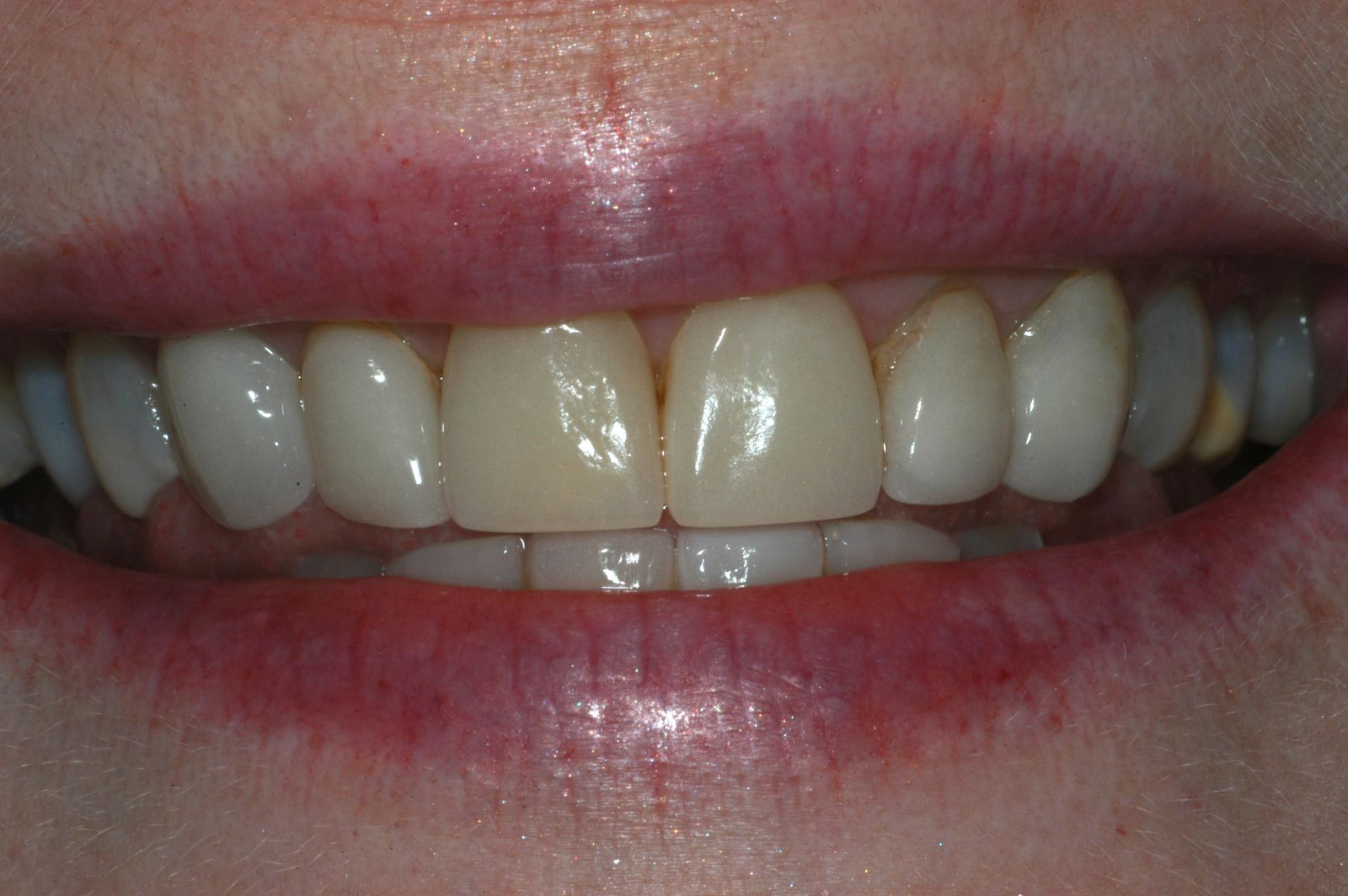 before veneers 3 - Findlay Ohio Veneers