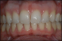 Invisalign after - Invisalign Finlay