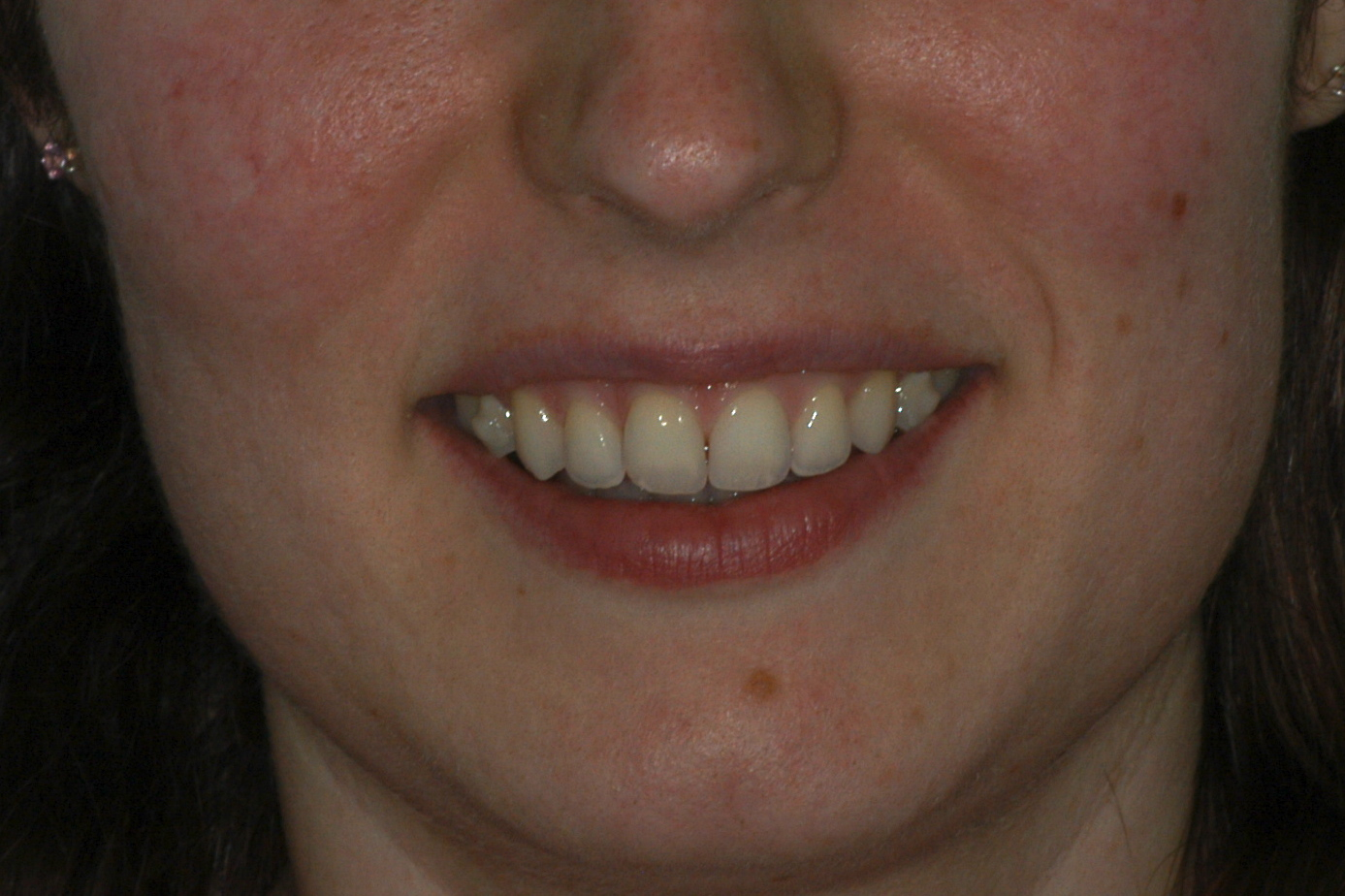 after invisalign 2 - Findlay Invisalign