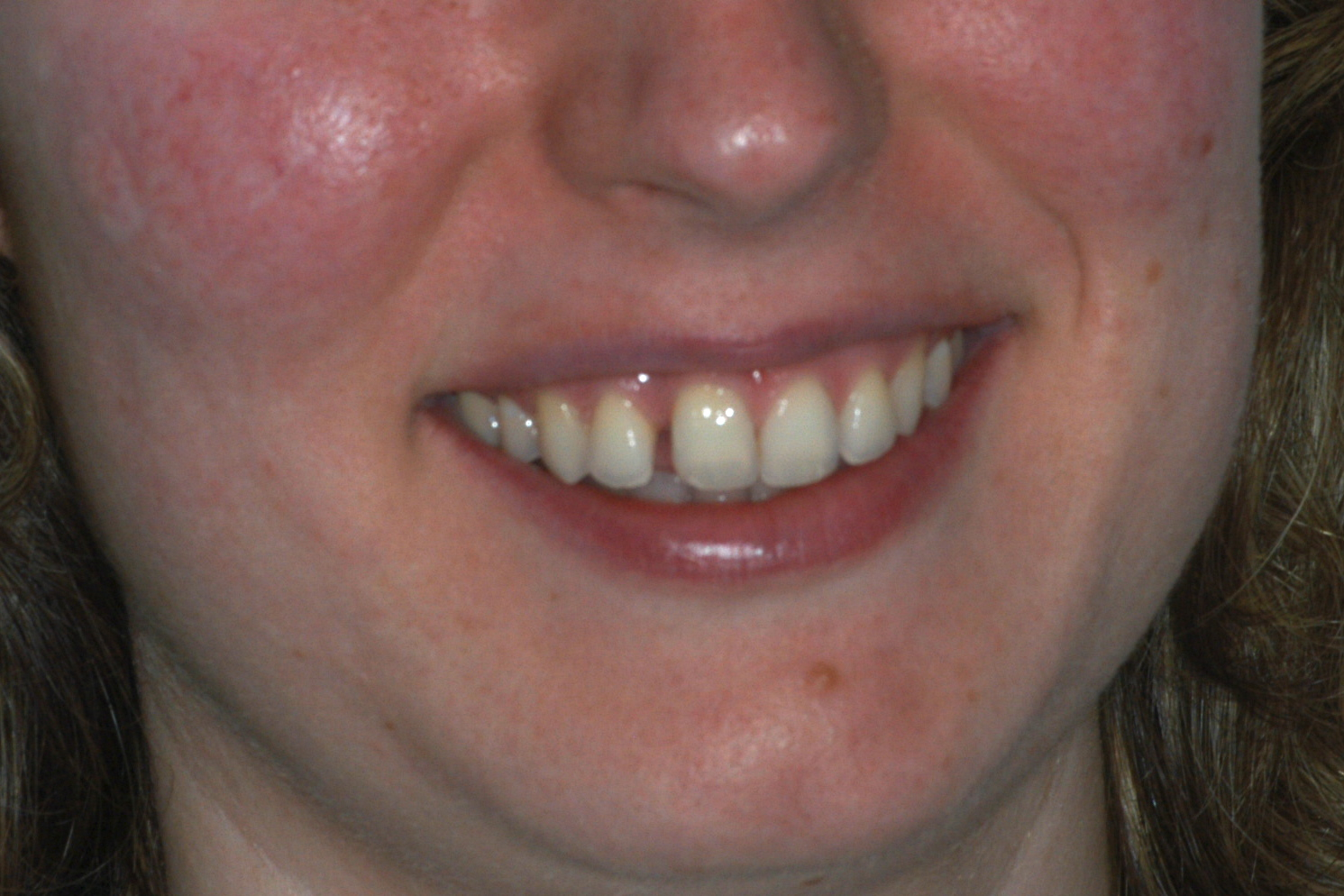 before invisalign 2 - Findlay Invisalign