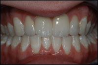after veneers 1 - Findlay Ohio Veneers