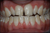 before veneers 1 - Findlay Ohio Veneers