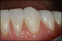 after veneers 2 - Findlay Ohio Veneers