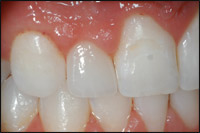 after 1 Prepless Porcelain Veneer - Findlay Veneers