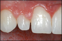 before Prepless Porcelain Veneer image 1 - Findlay Veneer